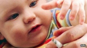 Exposure to tobacco smoke has been linked to lower birthweights and early deliveries